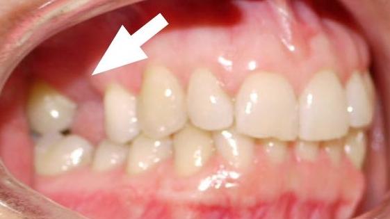 Backenzahn zahnlücke Lücke an
